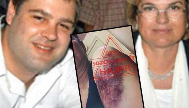 Tansu Çiller'in oğlu Mert Çiller'den eşine öldüresiye dayak! 10 yıl hapsi istendi